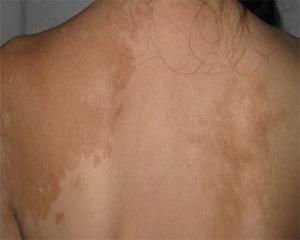 武汉白斑开始变浅是这病好转的症状吗?